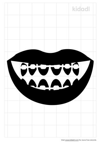 smile-braces-stencil.png